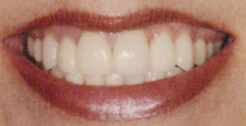 Closeup of healthy smile after the gap is closed between teeth