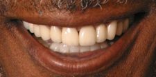 Closeup of healthy attractive smile after dental restoration