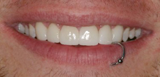 Healthy attractive smile with evenly spaced teeth
