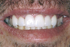 Healthy aligned smile after orthodontic treatment