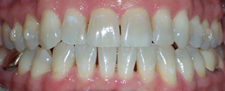 Brilliant white smile after cosmetic dentistry