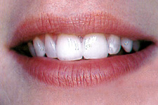 Smile with correctly positioned front teeth