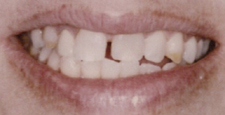 Closeup of smile with gap between front two teeth