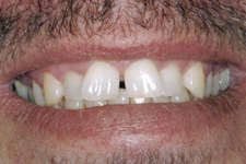 Large space between front teeth and crooked smile