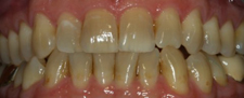 Yellow smile before cosmetic dentistry