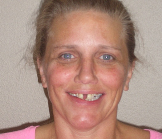 Woman with missing front tooth