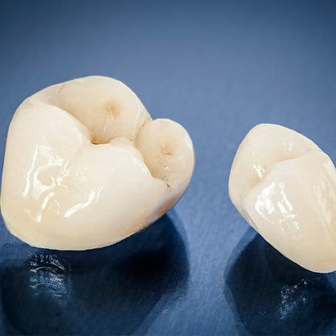 Two metal free dental crown restoration options