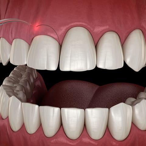 Animated smile during gum recontouring treatment