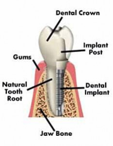 infographic of typical tooth