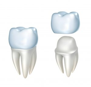 A 3D image of a dental crown