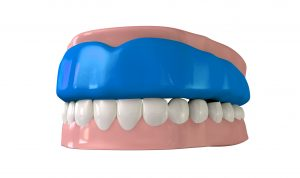 Model of an athletic mouthguard at dentist in Texas City.