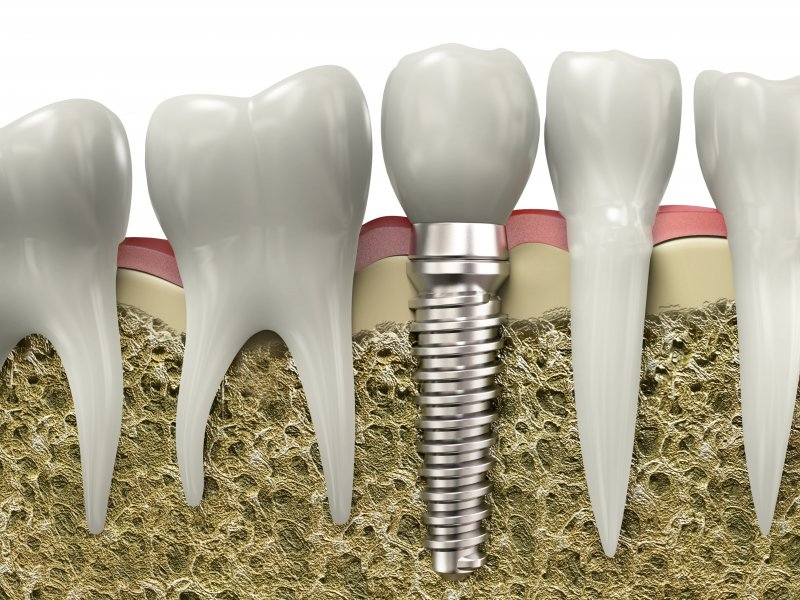 Titanium dental implant inserted into the jawbone